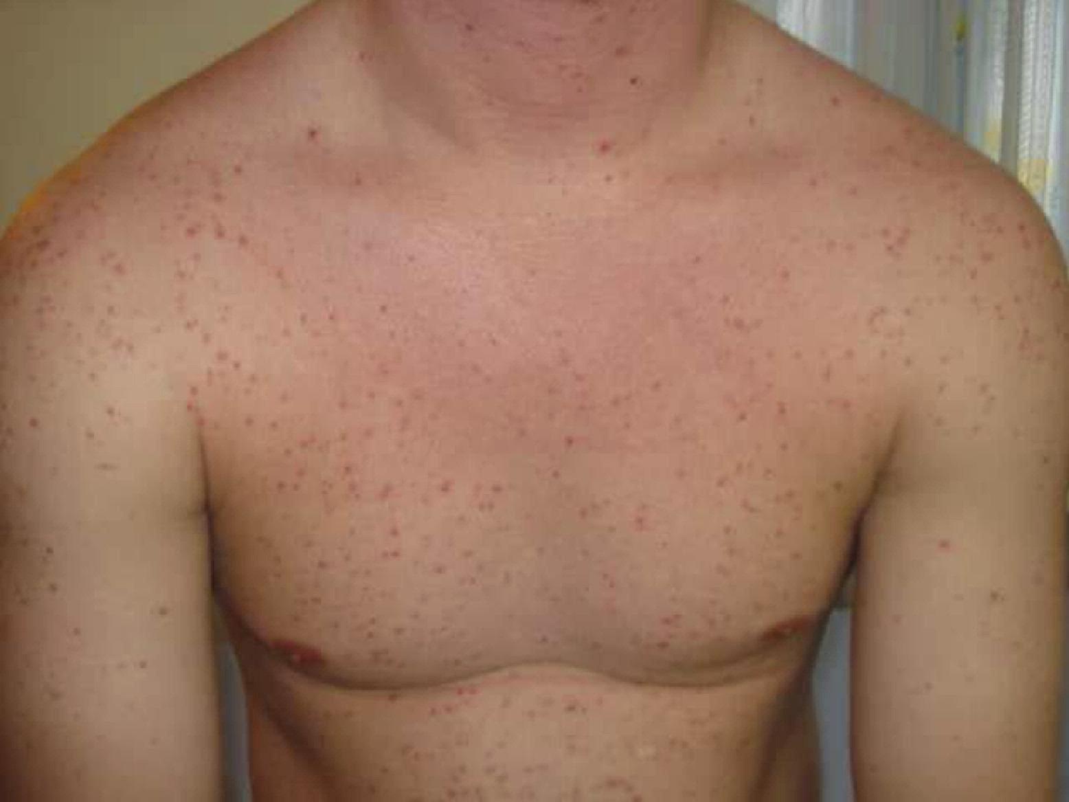 naplin steroids side effects